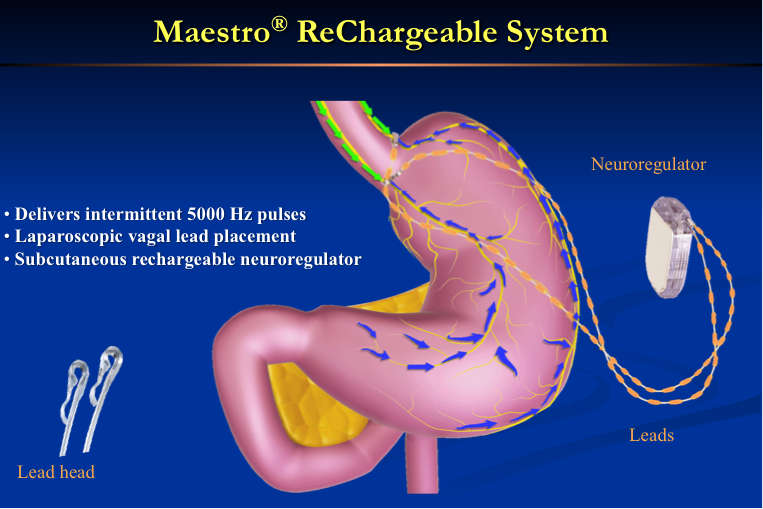 Maestro Vagal Blocking Re-chargeable System