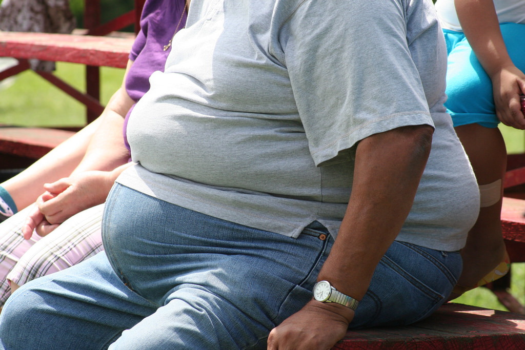 Gastric Sleeve Revision Factsheet Adelaide Bariatric Centre